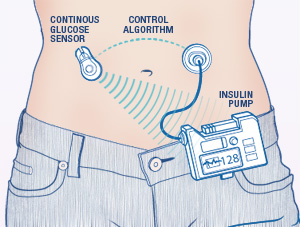 Graphic of Insulin Pump and CGM