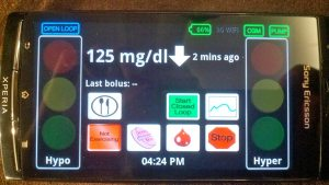 Artificial Pancreas Inside SmartPhone Prototype