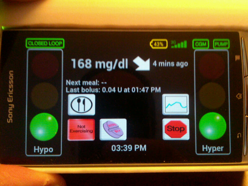 Wearing Artificial Pancreas In UVA Clinical Trial: Sugar In Range, Freedom and Coolness -- I Felt Like